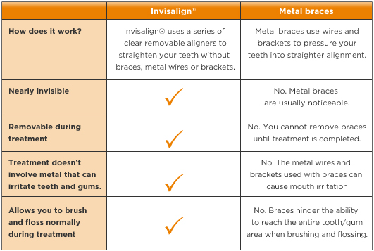 Invisalign Comparison Chart